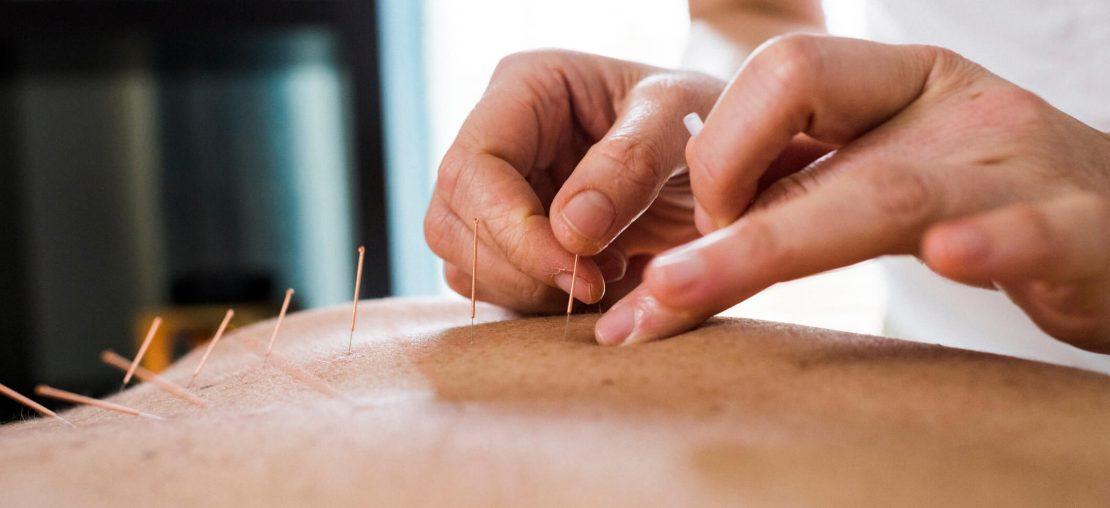 acupuntura integrativa